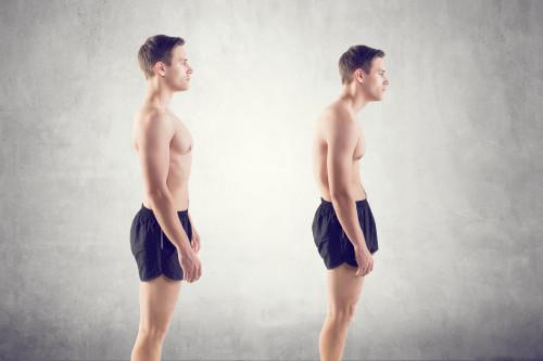 Anterior pelvic tilt and back pain