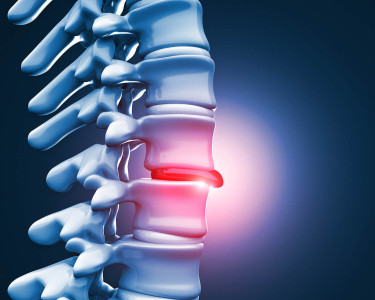 Should I get an MRI for my back pain?