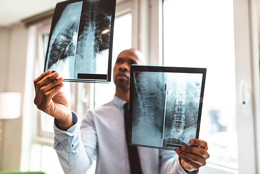 MRI's for back pain can confuse back pain sufferers and their practitioners